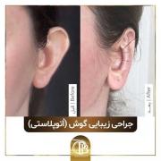 انواع جراحی گوش