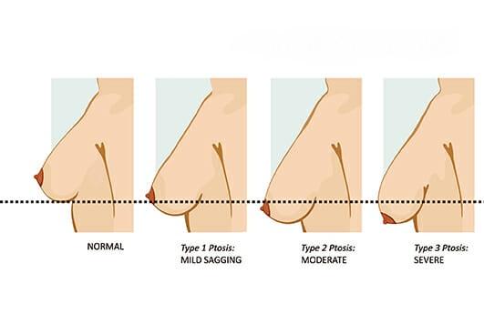 افتادگی سینه بعد ازپروتز