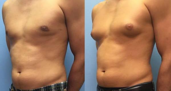 کوچک کردن سینه مردان