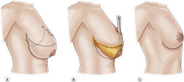 جراحی سینه